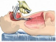 长期卧床患者并发症的康复预防与治疗